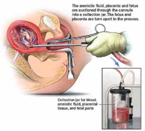 vacuum aspiration abortion2