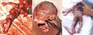 PRO CHOICE, ABORTED FETUS1